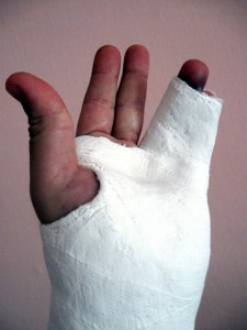 how to break your finger and get a cast